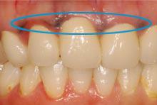 金属イオンが歯茎に沈着