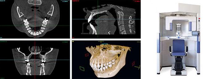 CTとCT画像